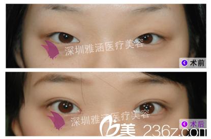 深圳雅涵侯文明教授修复双眼皮案例
