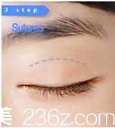 北京凯润婷医疗美容医院微创双眼皮示意图