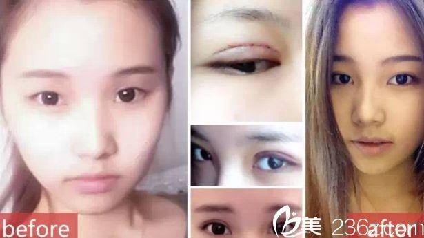 刘小姐双眼皮案例 张家口维多利亚整形