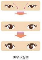 双眼皮   重睑图
