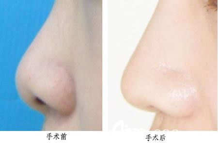 鼻部整形手术前后对比图