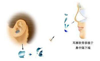 耳软骨塑鼻尖