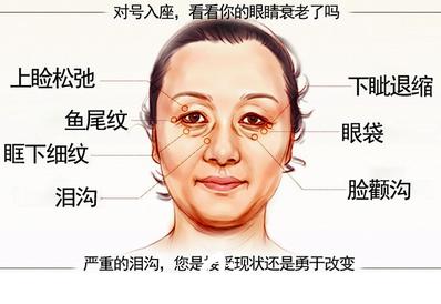 眼袋    眼部问题