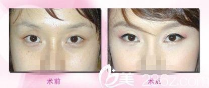 手术前后对比图     祛眼袋手术