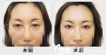 祛眼袋手术前后对比图