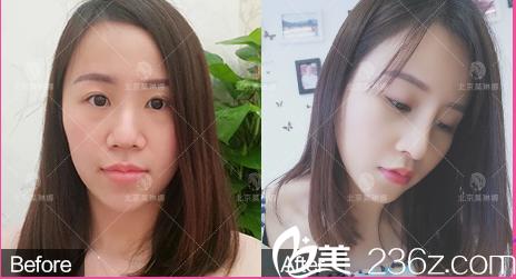 北京莫琳娜医疗美容案例