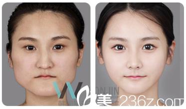 韩国原辰医院打造精致小脸案例