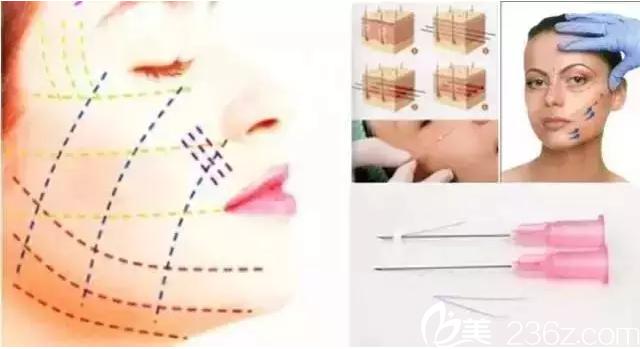 韩国原辰整形线雕面部提升