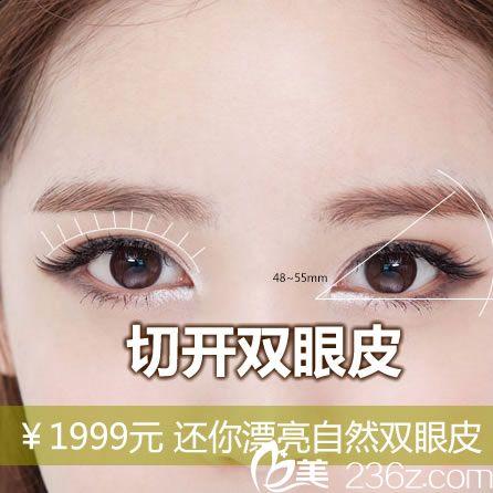 宁波壹加壹割双眼皮优惠活动 1999元起郭院长让你3天变大眼