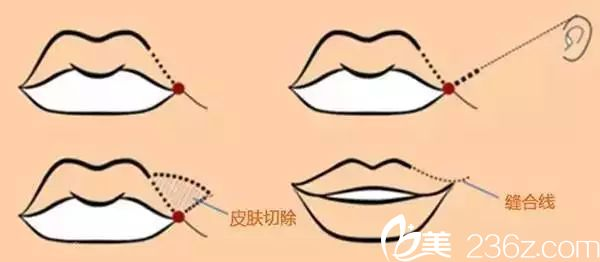 微笑唇是手术方法有两种埋线提拉法