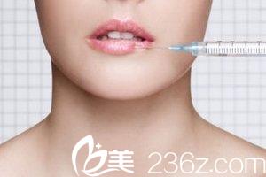 微笑唇的另一种手术方法注射法