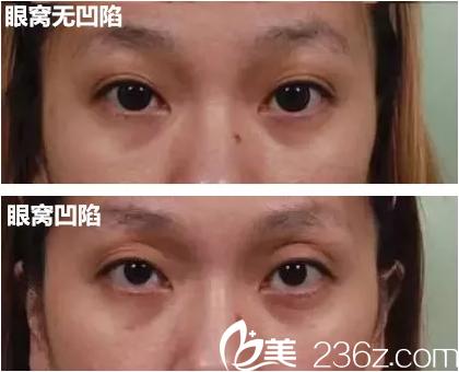 眼窝凹陷与不凹陷的区别