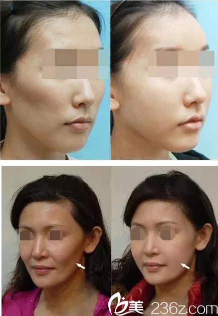脸颊凹陷与填充效果