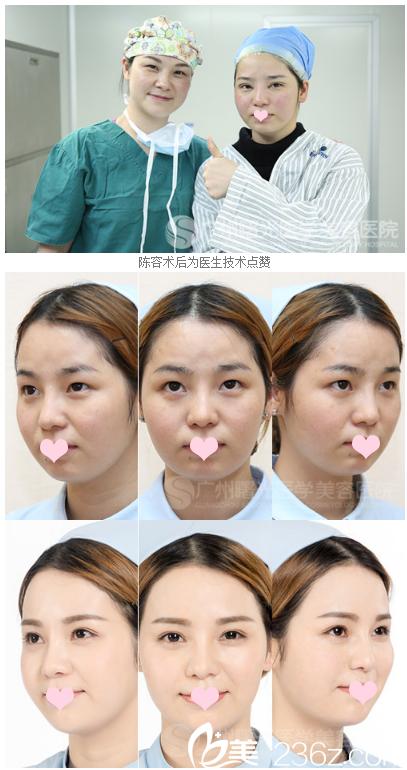 广州曙光范丹医生双眼皮案例对比图