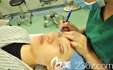 广州曙光王娟双眼皮手术过程