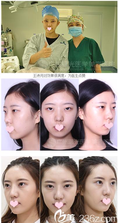 广州曙光王娟医生双眼皮案例前后对比图