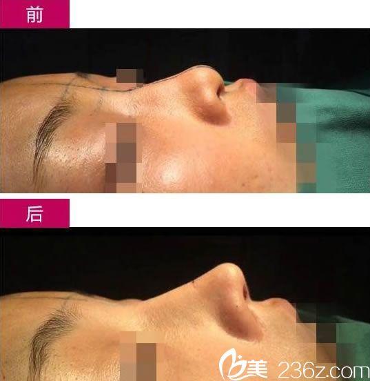 项昌峰院长的鼻修复案例
