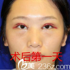 刚刚割完双眼皮之后的样子_看深圳米兰柏羽朱武根主任为我做的美杜莎双眼皮案例效果怎么 ...