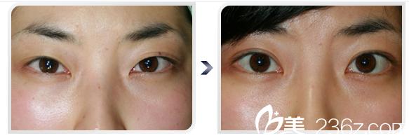 日本福田庆三做的开眼角眼睛案例图片