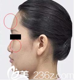 干瘪的苹果肌和额头
