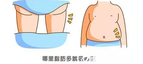自体脂肪填充瘦身美容两不误