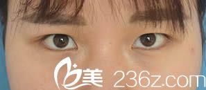 怎么样删除qq微博_大家看我找福州医科大学附属医院黄循镭做的双眼皮怎么样 - 美佳网