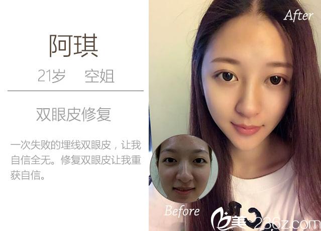 深圳蒳美迩整形医院朱灿双眼皮失败修复案例