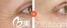 韩国韩国奥拉克皮肤科整外科金希侹玻尿酸除皱效果怎么样?真人案例
