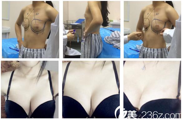 广州军美整形医院王世虎隆胸案例