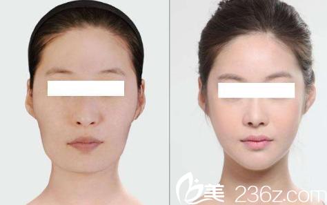 韩国DREAM梦想整形外科医院案例