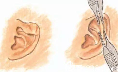 杯状耳矫正术