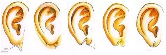 杯状耳矫正术Z字缝合