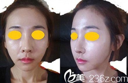 韩国布拉德外科整形医院石润院长做面部轮廓好不好?真人案例