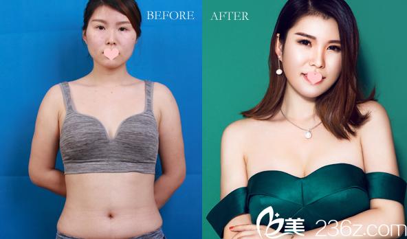 广州美莱整形医院穆大力做的内窥镜假体隆胸案例