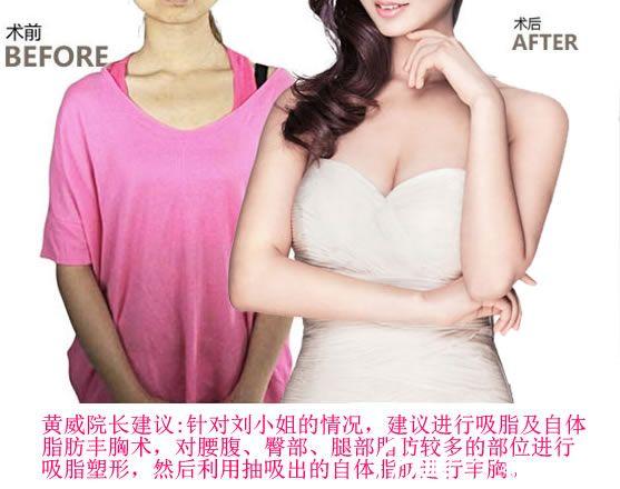 杭州珀丽整形做隆胸手术案例