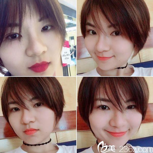 分享找杭州新友好黄威做鼻综合变美经历 假体隆鼻手术费用17000元