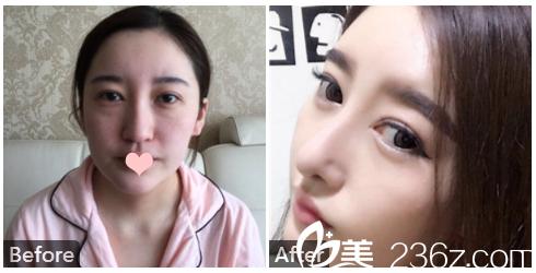 广州南珠整形陈兵肋软骨隆鼻案例