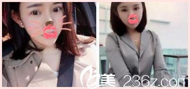 我叫李童童在郑州爱美丽整形做了光纤溶脂瘦脸
