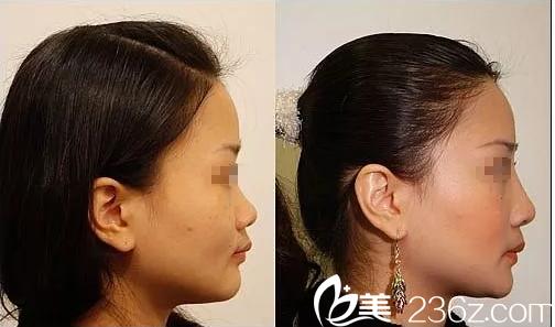 天津联合丽格第三医疗美容医院案例