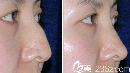 常见的驼峰鼻形态