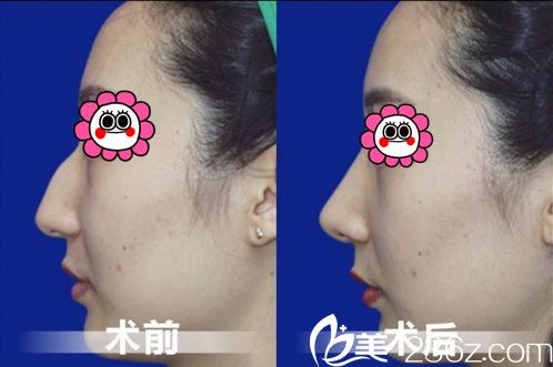 驼峰鼻案例2