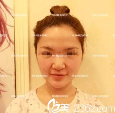 南京维多利亚整形美容医院李志生术前照片1
