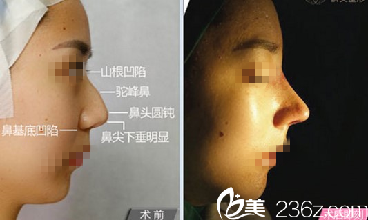 杨明洁手术案例效果对比