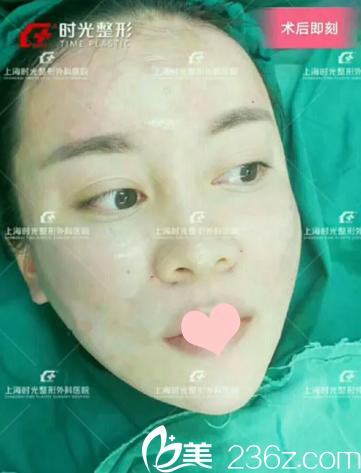 面部脂肪填充术后即刻效果