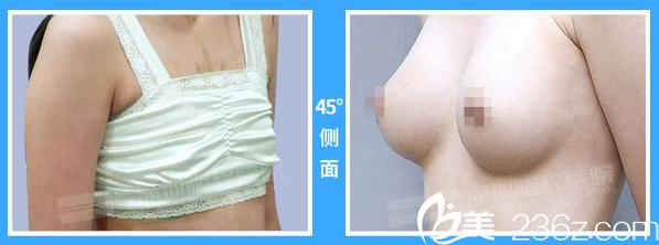 深圳鹏程医院宋路隆胸案例