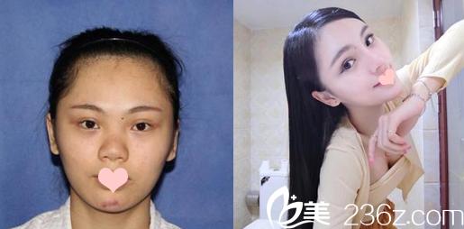 深圳鹏程医院刘冰大夫做的鼻综合隆鼻对比图