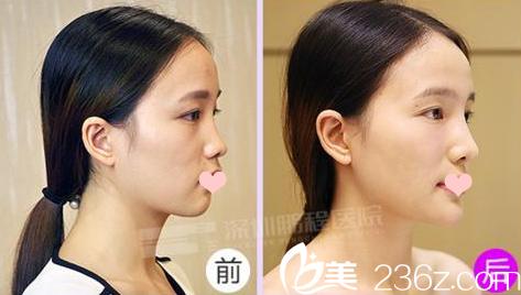 深圳鹏程医院整形科刘冰隆鼻案例