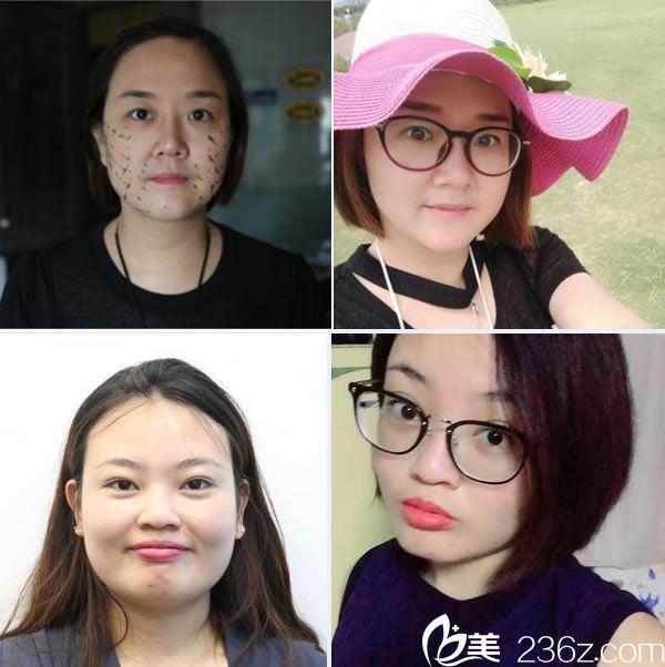 杭州程卫民医生做面部线雕提升案例