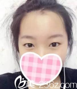 沈阳星美医疗美容门诊部刘永丰术前照片1