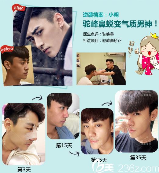 深圳美莱隆鼻一个月恢复过程图
